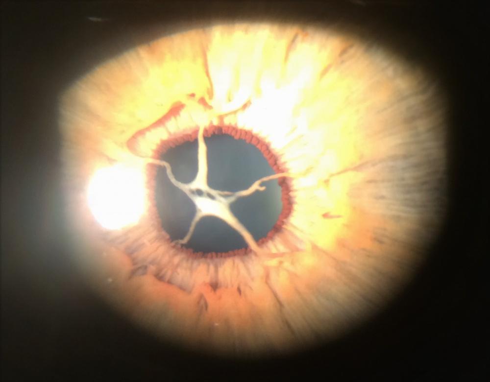membrana pupilar em estrela