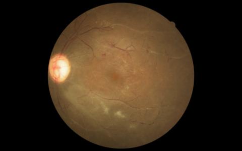 Título: Vasculite retiniana na Arterite de Takayasu